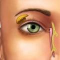 Болезни глаз у людей: симптомы и причины