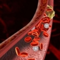 Что такое тромбоз?