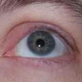 Информация для всех: как лечить ячмень на глазах