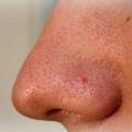 К чему снится нос?