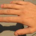 К чему снятся пальцы рук?