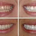 Как без проблем отбелить зубы в домашних условиях