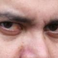 Красные глаза, что делать?