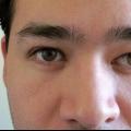 Лечение косоглазия у взрослых. хирургическое лечение косоглазия