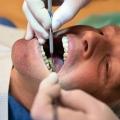 Мышьяк в зубе - зачем его используют?