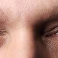 Почему дергается правый глаз и как с этим бороться