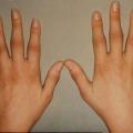 Почему отекают пальцы?