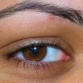 Причина красных глаз: советы офтальмолога