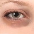 Темные круги под глазами: причина их появления и эффективное лечение
