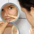Темные пятна на коже: причины и их устранение