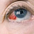 Травма глаза. причины и лечение