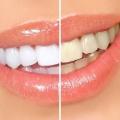 Узнайте, как отбеливать зубы в домашних условиях