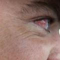 Воспаление глаза: причины и лечение
