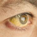Желтое пятно на белке глаза, что делать