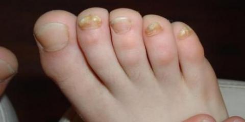 Как лечить грибок на ногах?