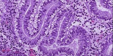 Как нарастить эндометрий