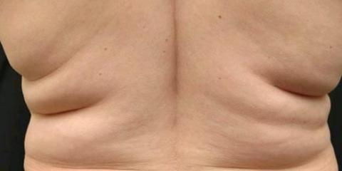 Как убрать жир со спины?
